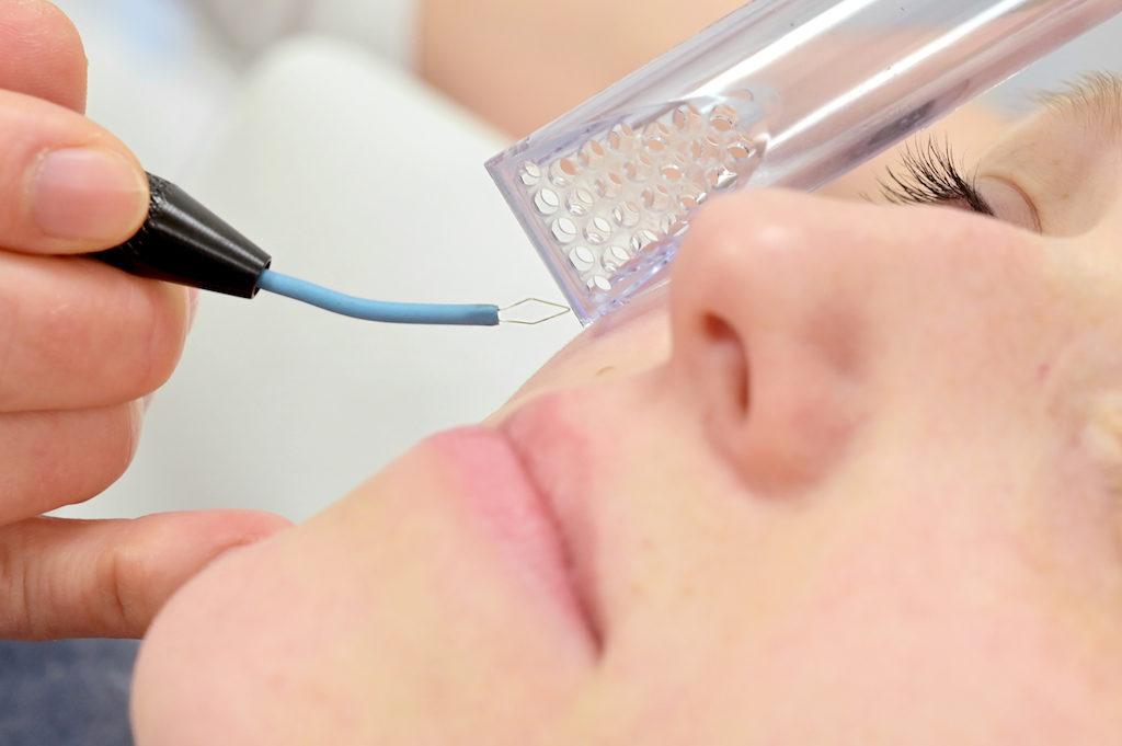 Die Dermatologische Leistungen Ihrer Hautarztpraxis Langenhagen